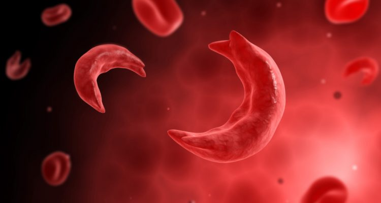 FDA approves first new sickle cell drug in nearly 20 years
